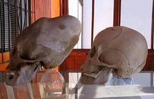 czaszka14